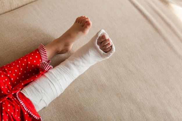 집에 있는 소파에 누워 있는 깁스를 하고 알아볼 수 없는 소녀의 다친 다리
