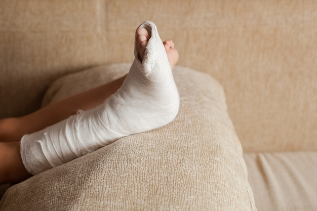 Injured leg of an unrecognizable girl in a cast lying on the sofa at home