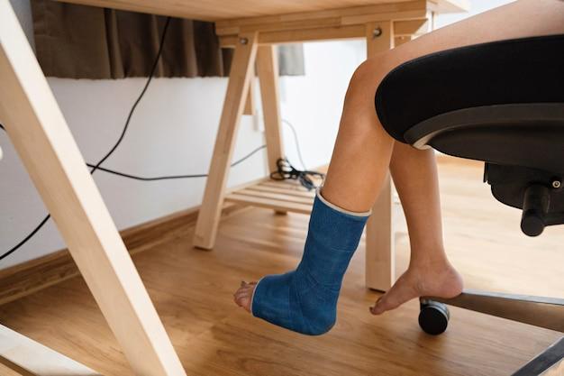 木製の机で働く石膏ギプスで足の骨折の負傷した女性