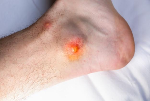 벌레가 발에 물립니다. 모기 문제. 가려운 상처.