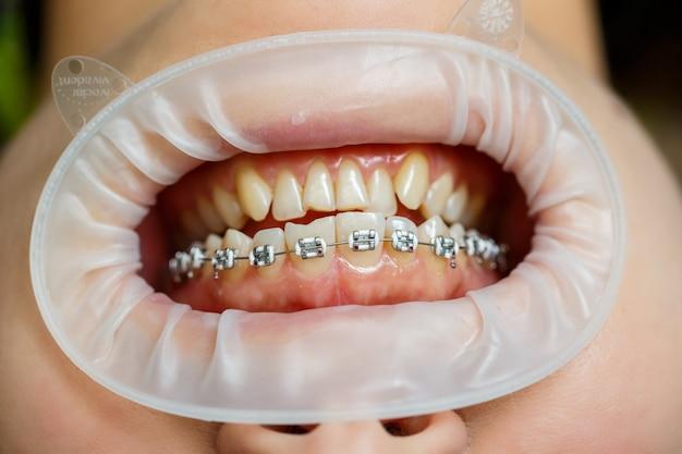 Установка брекетов на зубы. ортодонтическое лечение зубов. крупным планом зубы с подтяжками. фото высокого качества