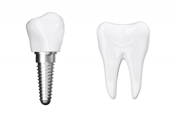 Isolate close up process implants with beauty white teeth. 3d render