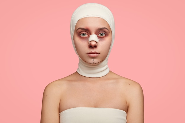 Isolated shot of girl has naked shoulders, face marked in lines, wrapped with bandage, prepared for facial treatment