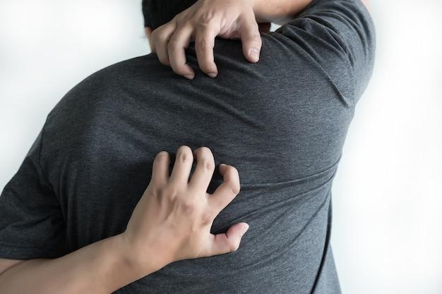 건강과 의학 건강 문제를 긁는 가려운 팔