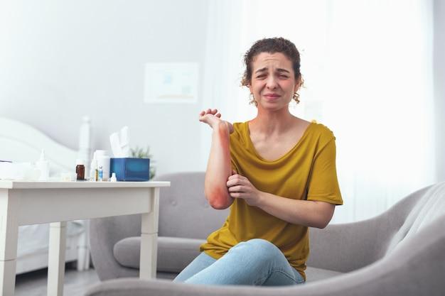 ひじのかゆみ。皮膚病に苦しんで彼女の発疹の肘を引っ掻く灰色のソファに座っている若い感染した女の子