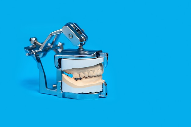 Jaw cast in a special medical device on blue