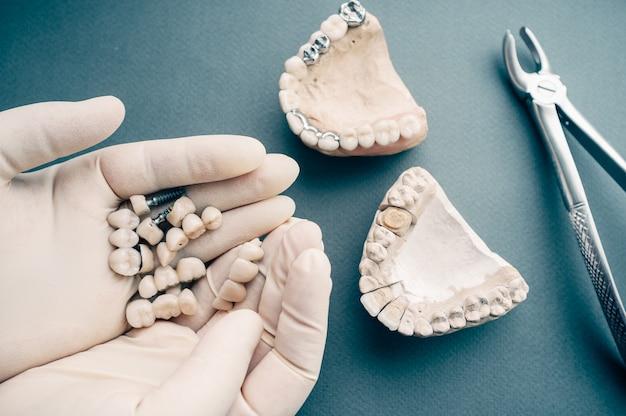 Модель макета челюсти и зубные протезы с коронками в руках врача