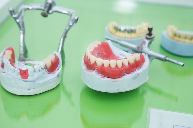 Jaw mock-up on the dentist's table