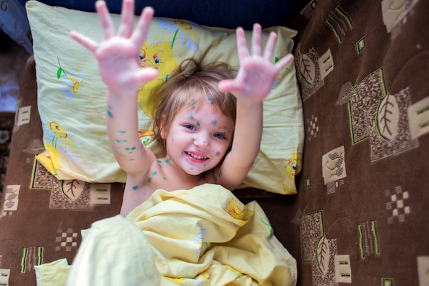 The joyful little girl sick with chicken pox lies in a bed and shows palms
