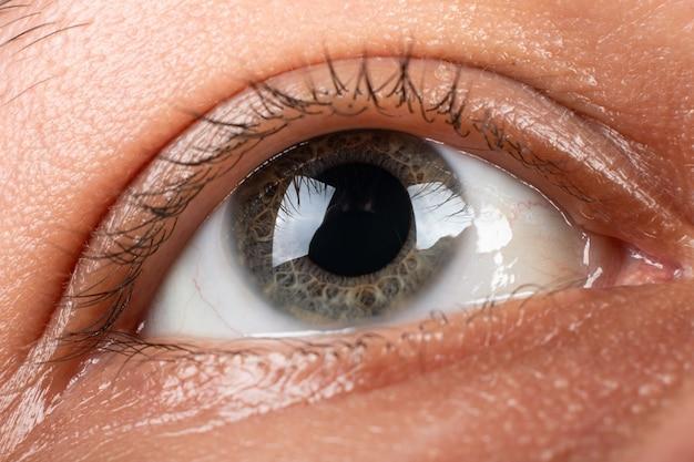 Кератоконус крупным планом глаза, истончение роговицы.