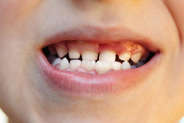 Открытый рот ребенка показывает зубы кариеса