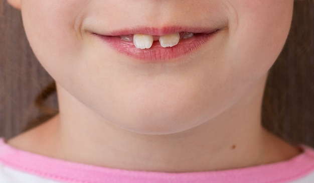 前歯上部が突出している子供