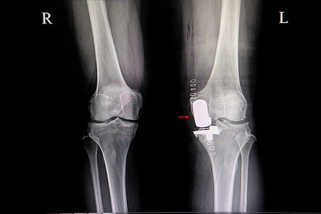 A knee prosthesis