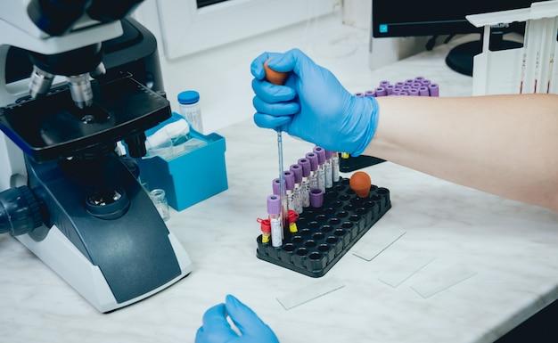 Лаборант проводит анализ крови.