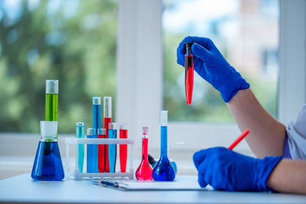 Laboratory assistant conducts clinical laboratory research, holds a test tube in his hands and writing the result of the study in clipboard. medicine, pharmacy and cosmetology concept.