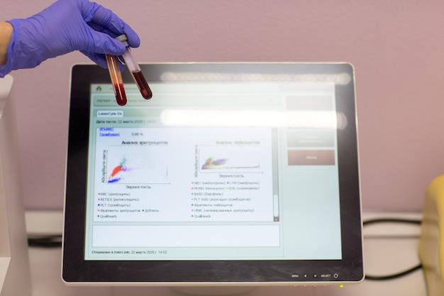의료 실험실의 실험실 조수는 혈액과 혈장이 있는 시험관을 손에 들고 분석을 하고 있습니다.