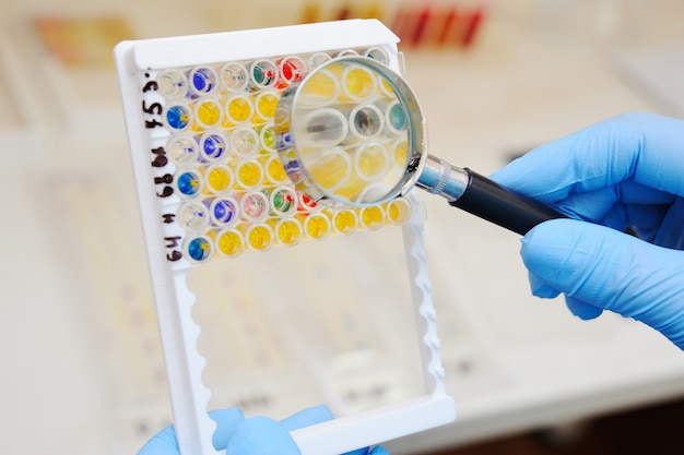 A laboratory assistant or a scientist examines through a magnifying glass bacterial tests against the background of a bacteriological laboratory