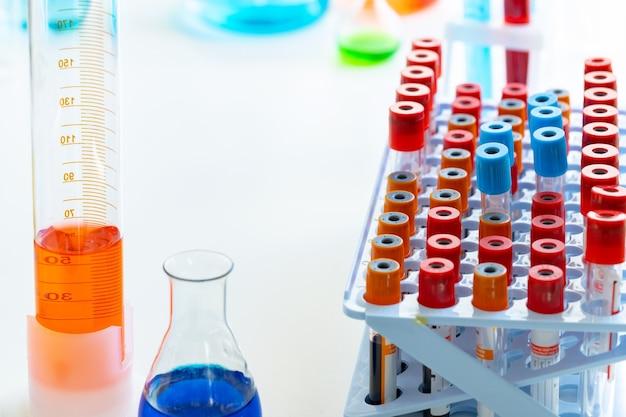血液サンプルラックとテーブル上の化学物質を含むガラス器具の実験室の背景