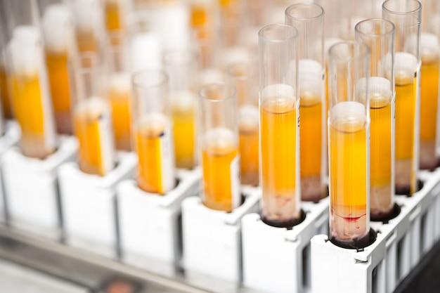 과학 연구실에서 실험하기 위해 주황색 액체로 채워진 실험실 유리 시험관