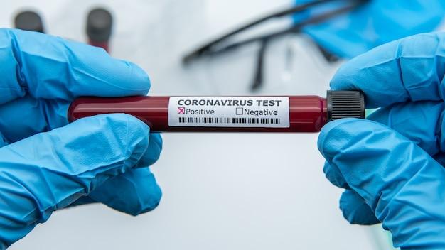 検査技師がコロナウイルス検査のために陽性の血液サンプルチューブを手に持つ