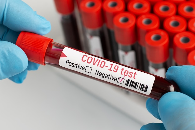 Лаборант изучает кровь пациента на опасный вирус, держа в руках образец с отрицательным результатом. врач использует качественный метод анализа крови на коронавирус
