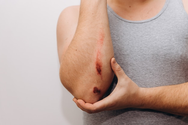 Large abrasions on the forearm of a man after a fall. the man holds his elbow with his hand.