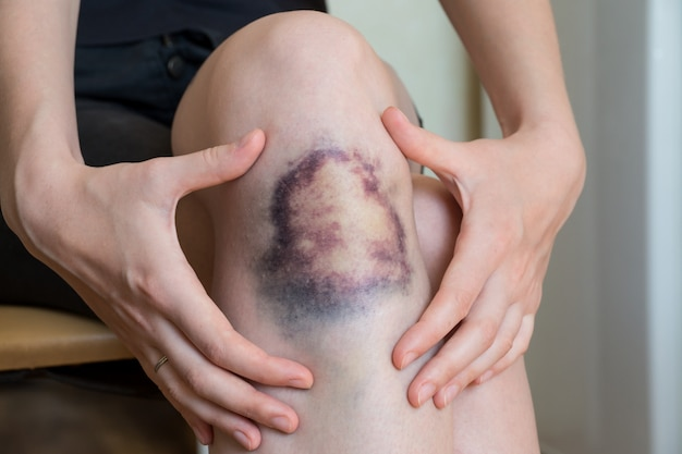 Large bruise damage on knee of young woman