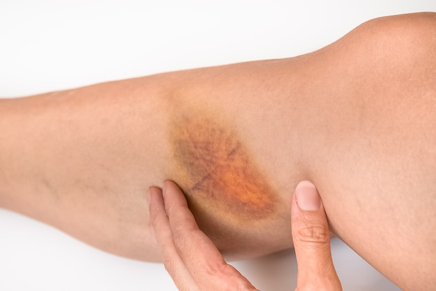 Large bruise hematoma on the womans leg on the skin