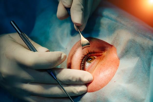 視力のためのレーザー矯正。目の眼科手術。視力矯正。