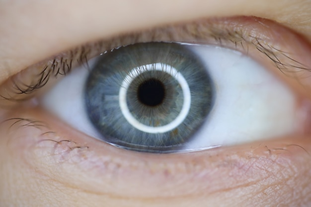 Laser correction vision concept