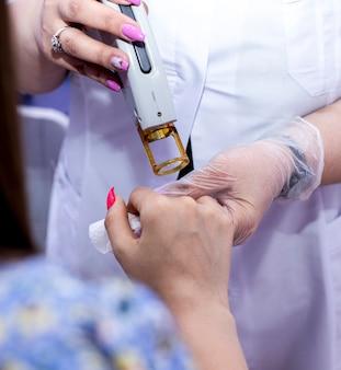 Laser epilation of hands and fingers.