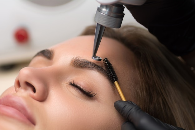 Laser removal of permanent makeup
