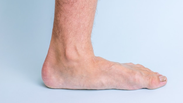 Left leg of man with signs of joint disease and flat feet.