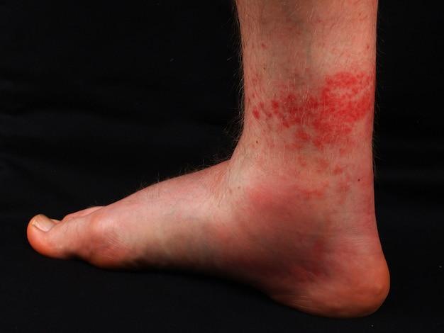 Нога после укуса пчелы