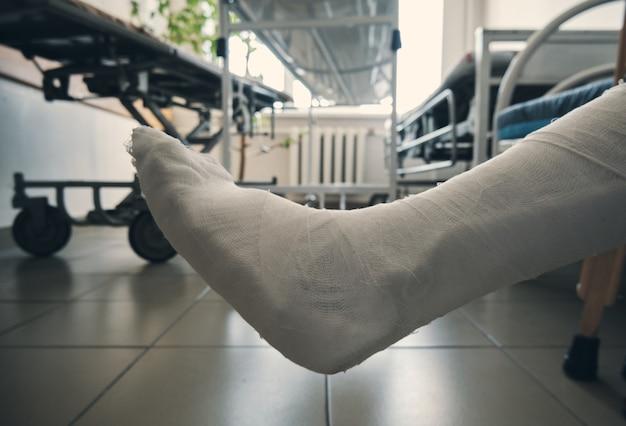石膏ボンデージのクローズアップの脚。足の怪我。機動性の喪失。骨折後のリハビリテーション。