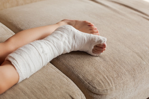 발목 골절로 사고로 넘어진 후 소파에 앉아 있는 10대 소녀의 석고 다리