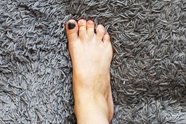 회색 카펫에 발톱에 멍이 있는 다리 프리미엄 사진