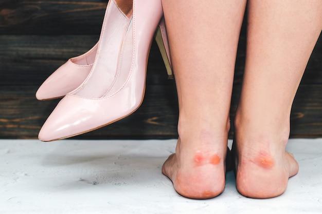 나무 배경에 뾰족한 발가락이 있는 세련된 분홍색 하이힐을 신고 굳은살이 있는 소녀의 다리.