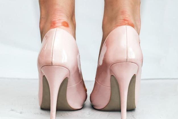 뾰족한 발가락이 있는 세련된 분홍색 하이힐을 신고 굳은살이 있는 소녀의 다리