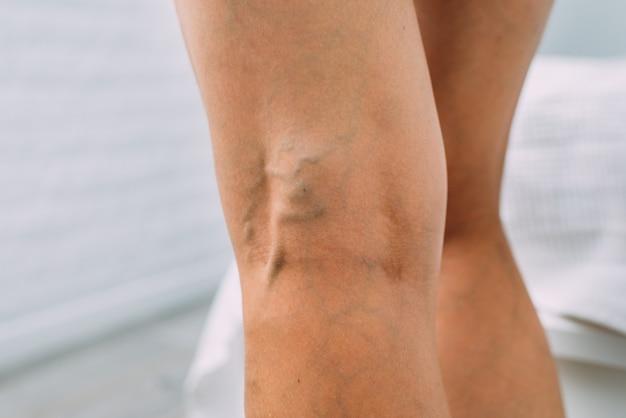 정맥류와 뚜렷한 메쉬가 있는 여성의 다리.