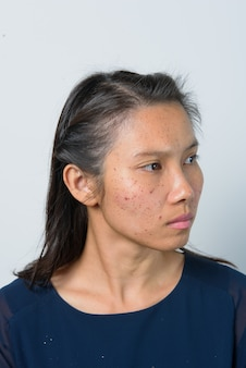 Lesions from the laser face, the woman is wound in the face