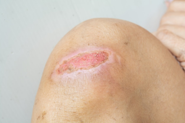 Lesions and knee injuries. lesions from accident