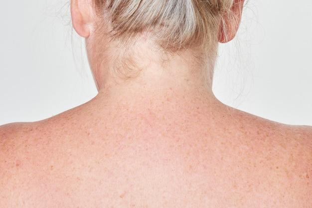 가벼운 피부 등 주근깨 안색 근접 촬영