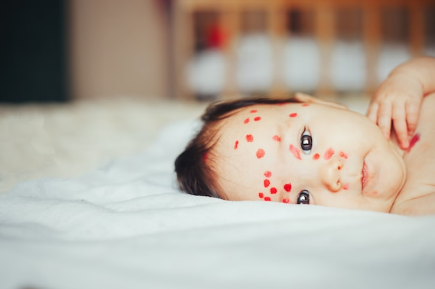 Little 5 months baby with chickenpox lying on bad at home