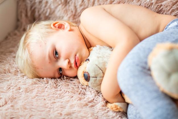 Маленький мальчик с вирусом ветряной оспы или пузырьковой сыпью при ветряной оспе в домашних условиях
