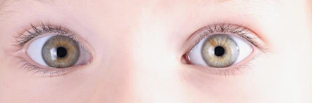 わずかな斜視のクローズアップで小さな女の子の目