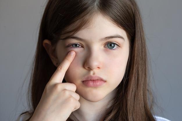 小さな女の子は目の痛み、目の怪我、結膜炎、アレルギーを持っています、子供は腫れた目をしています