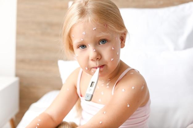 Маленькая девочка заболела ветрянкой дома
