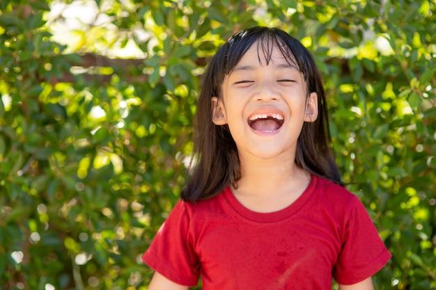 그녀의 깨진 우유 이빨을 보여주는 어린 소녀
