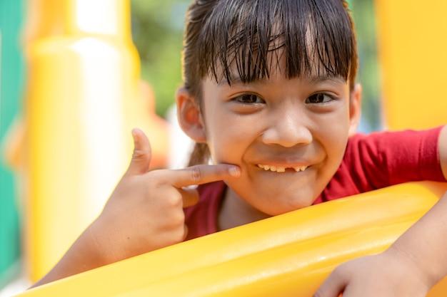 Little girl showing her broken milk teeth